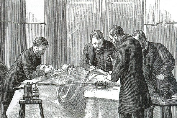 Lister spraying phenol over the wound while the doctors perform an operation.