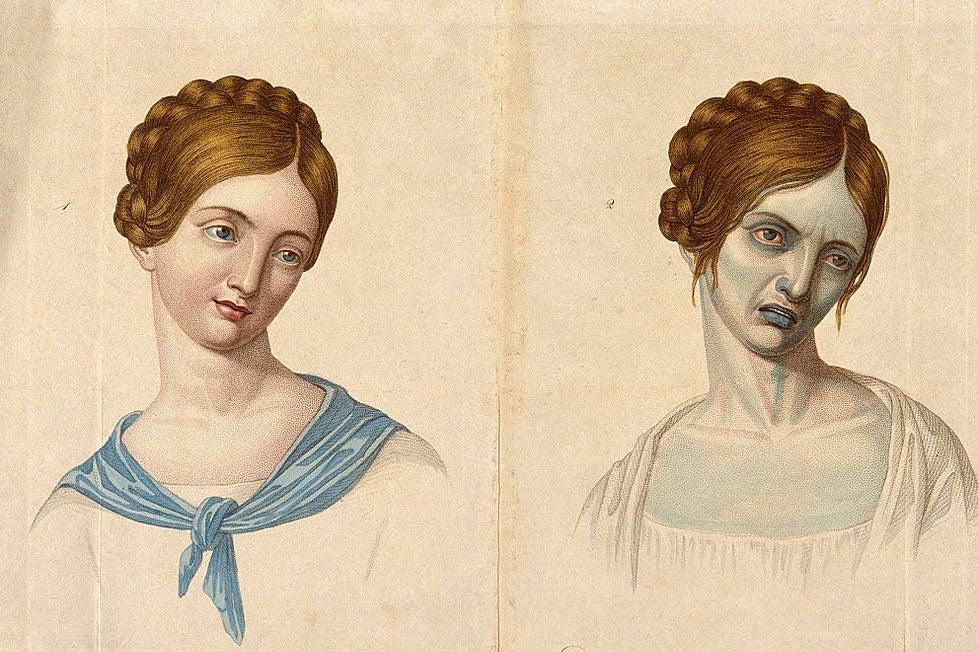 cholera woman