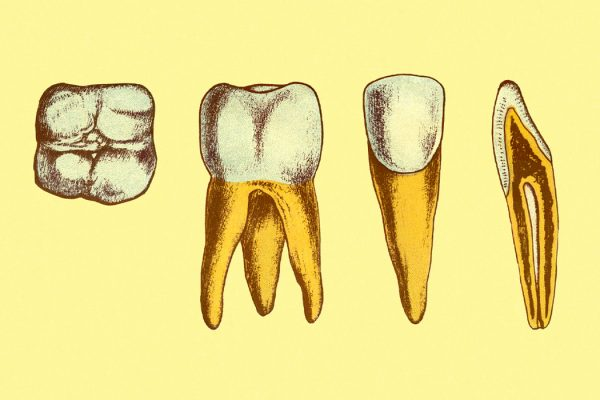 Four teeth on a yellow background