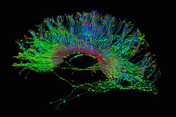 A Diffusion MRI, also referred to as diffusion tensor imaging or DTI, of the human brain