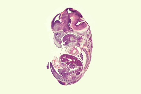 Mouse embryo