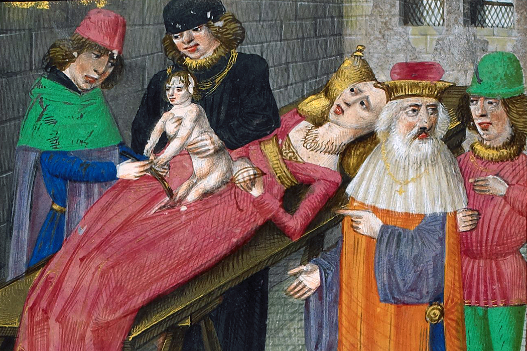 Medieval depiction of Caesarian birth