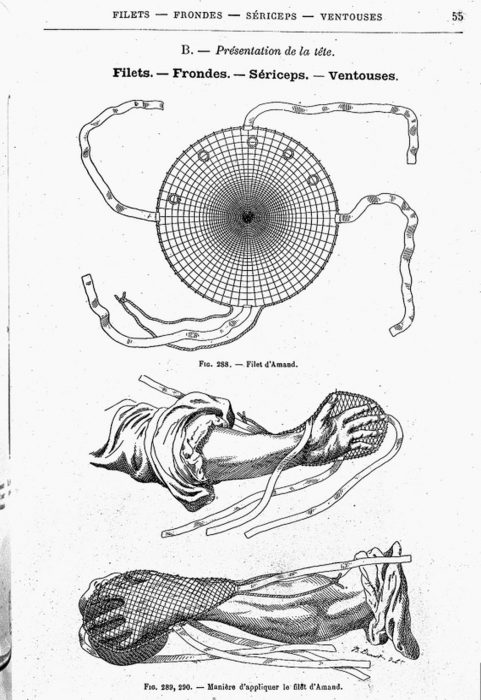 Obstetrical instruments, 1887