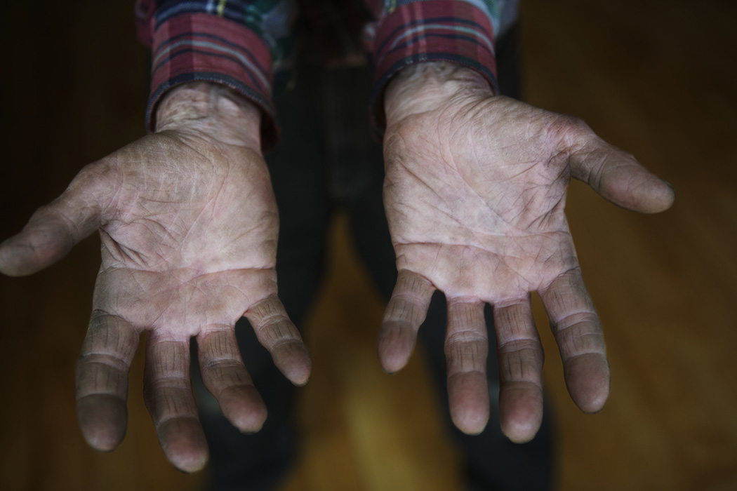 A person's palms presented to the camera