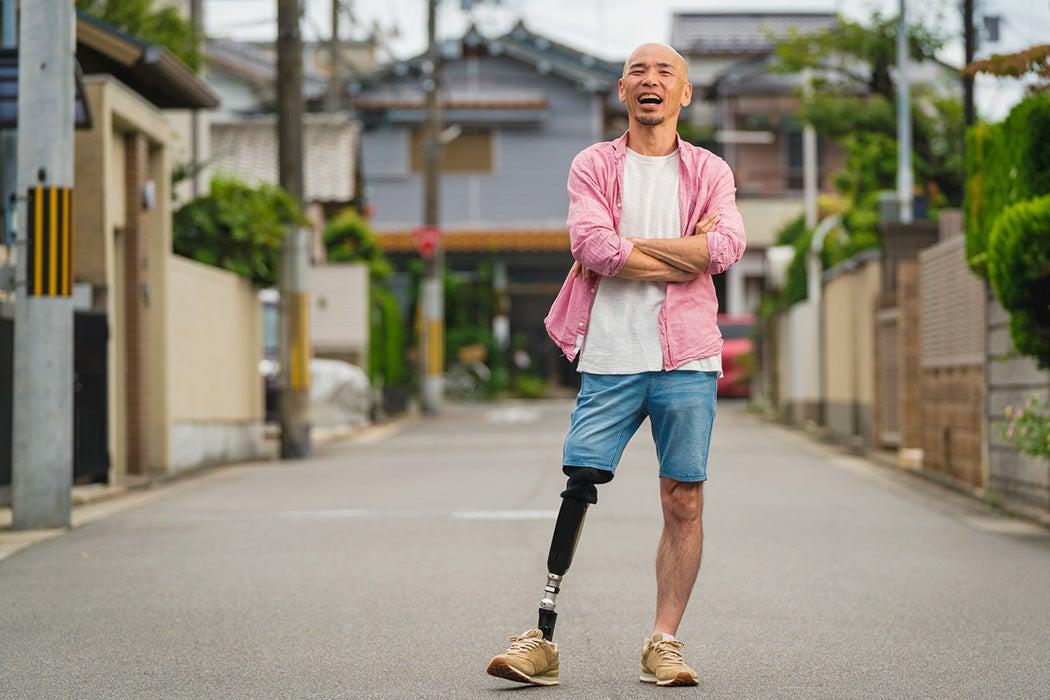 A man with a prosthetic leg