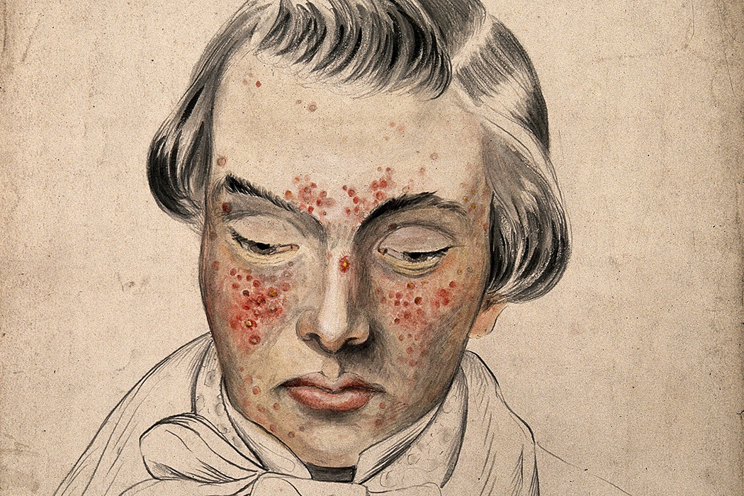 Illustration: Head of a man with a severe disease affecting his face by Christopher D' Alton, 1858  Source: https://www.jstor.org/stable/community.24834473